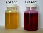 bacteriaresultsbottles